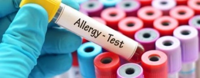 Allergie diagnostiek