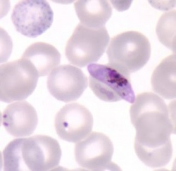 250_plasmodium_falciparum_gametocyt_trofo_bron_cdc.jpg